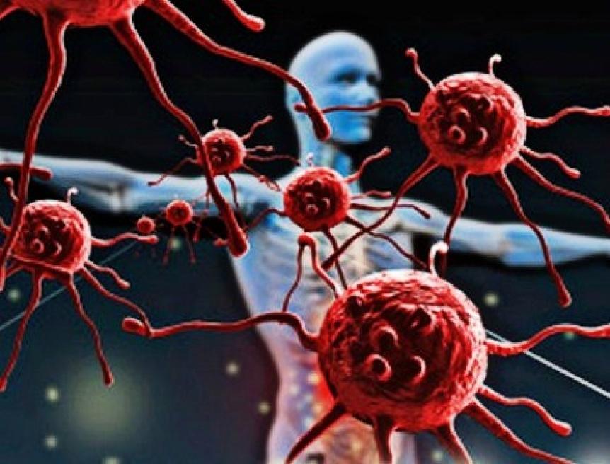 Las enfermedades autoinmunes est�n en aumento